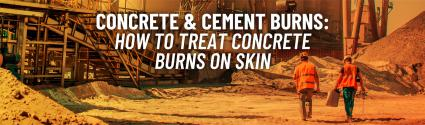 Concrete & Cement Burns: How to Treat Concrete Burns on Skin